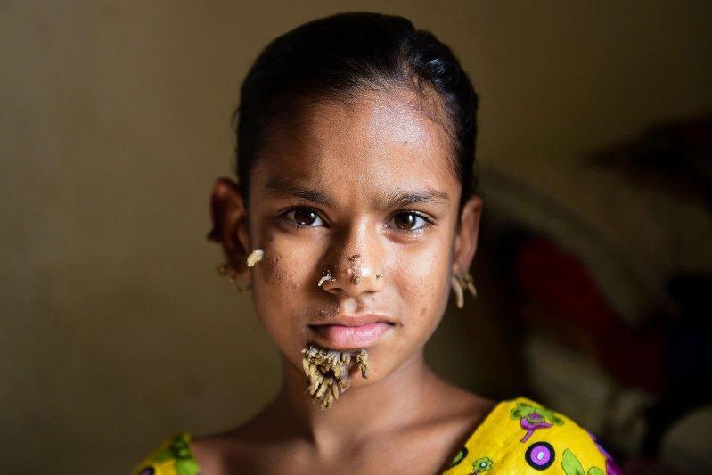 Девочка с болезнью человека-дерева