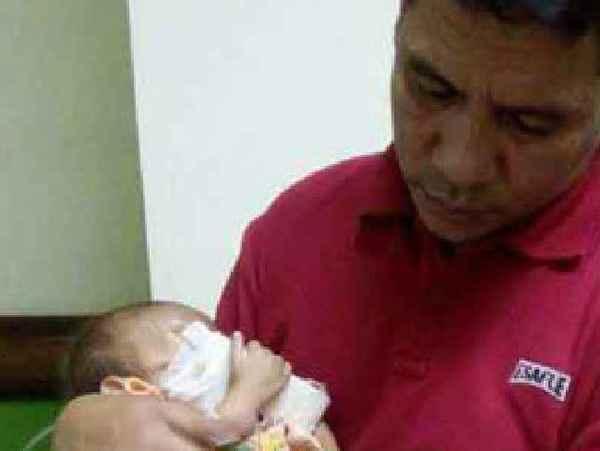 Хирурги обнаружили внутри младенца близнеца-паразита