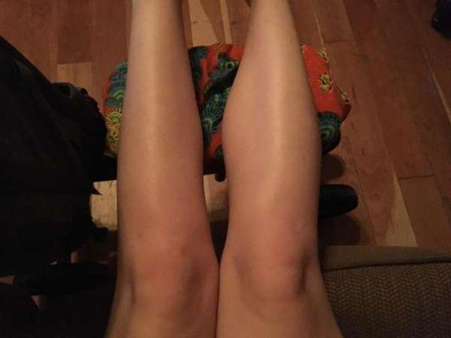 Что будет, если долго не использовать свою ногу